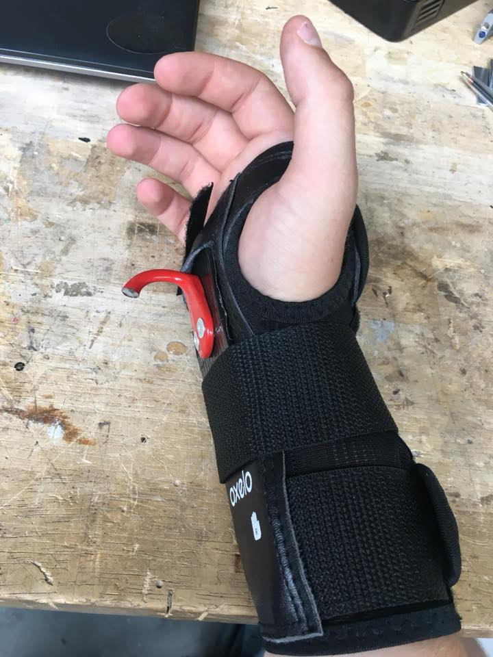 Picture of Creating a Brace for Support of the Right Arm