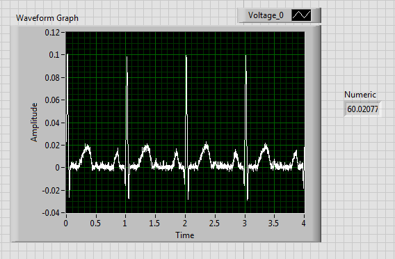 Picture of ECG and Heart Rate
