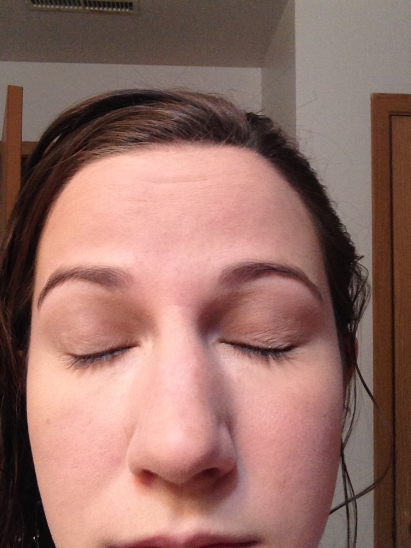 Picture of Eyelids