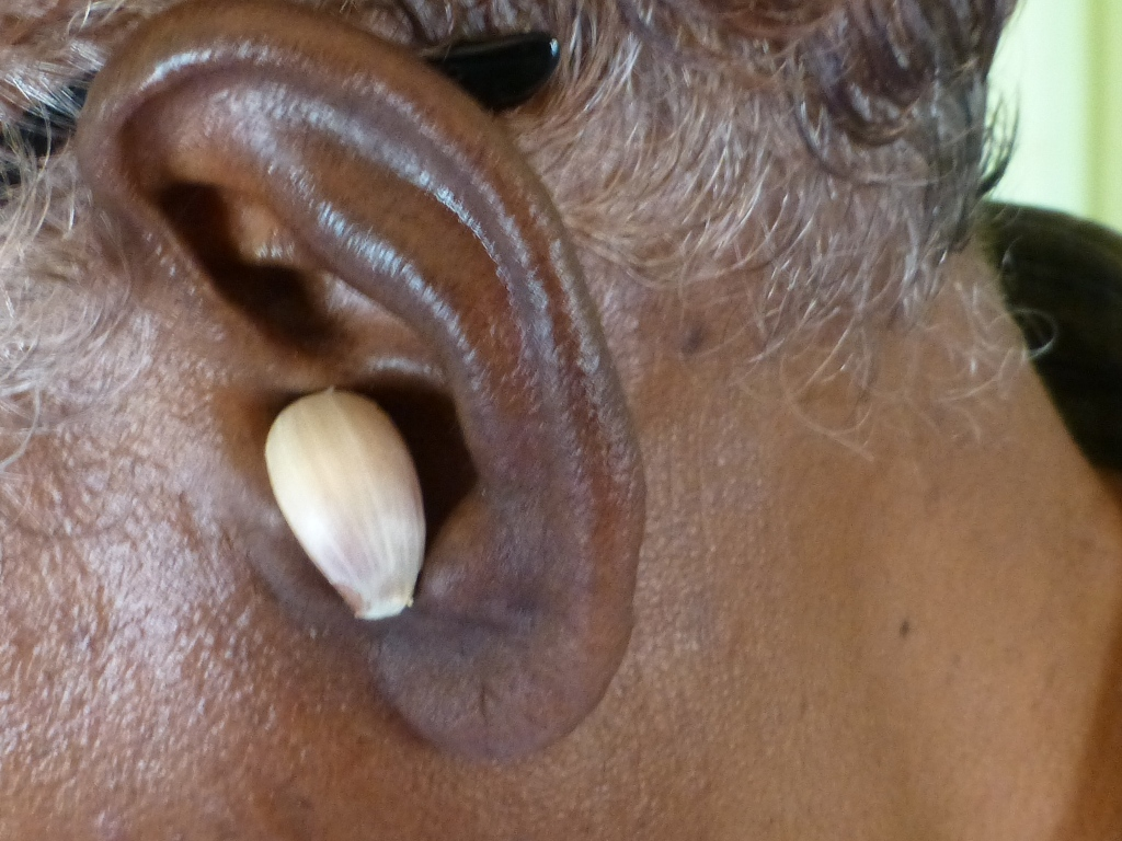 Picture of Ear Infection