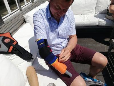 Prosthetic Arm Shell