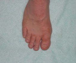 Foot Fungus Cure/Prevention