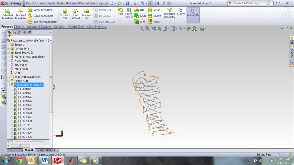 How to Make a 3D-Printable CAD Model From MR Scans: 13 Steps