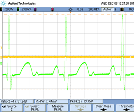 Digital ECG and Heart Rate Monitor