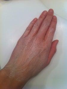 Winter Hands Remedy (dry Skin)