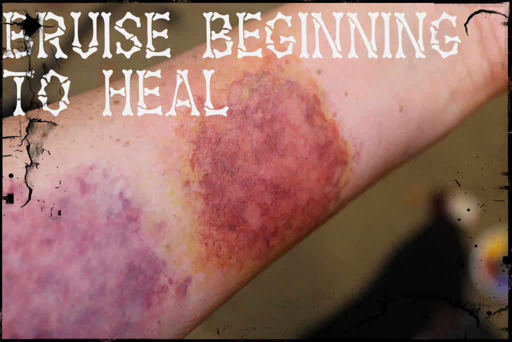 Picture of Bruise Beginning to Heal