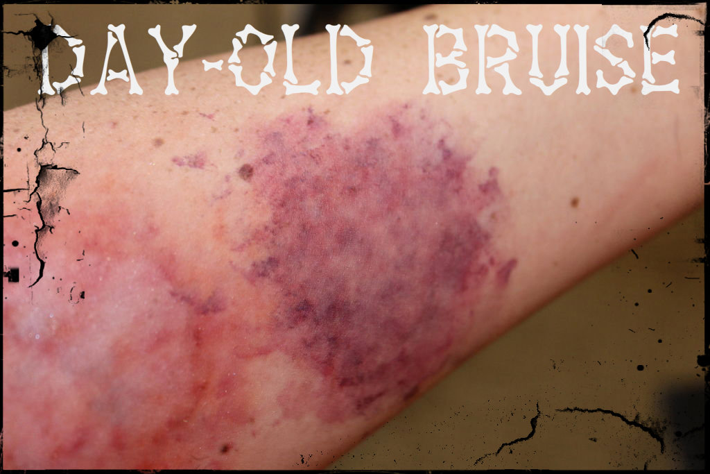 Picture of Day-Old Bruise
